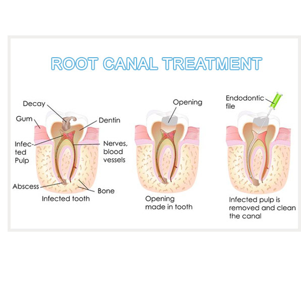 Root Canals2